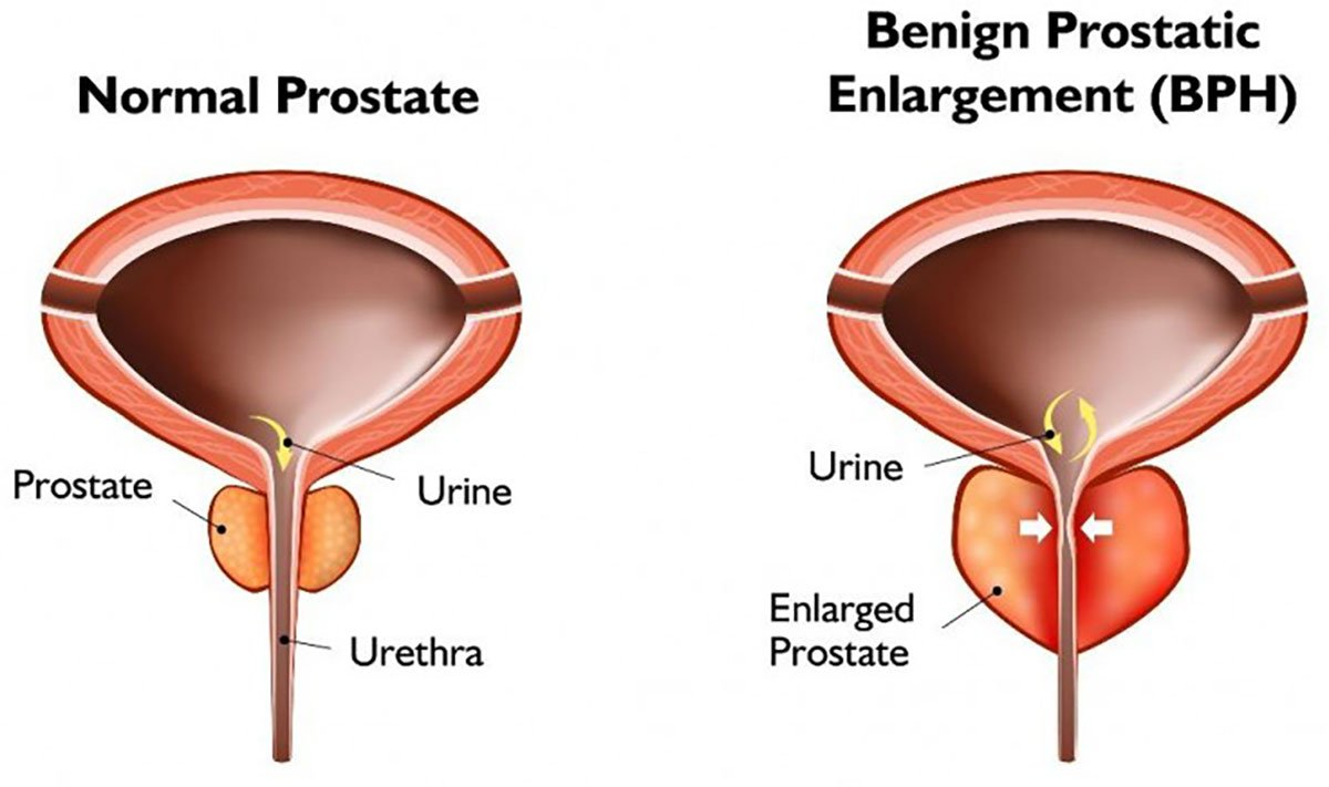 Urology - What is BPH