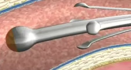 Vein Disease Video