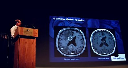 Gamma Knife Radiosurgery - Brain Surgery without a knife - Billings Clinic Science Expo Feature Presentation - Mark Piedra, MD