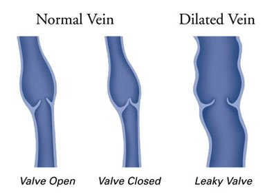 Normal and dilated veins.