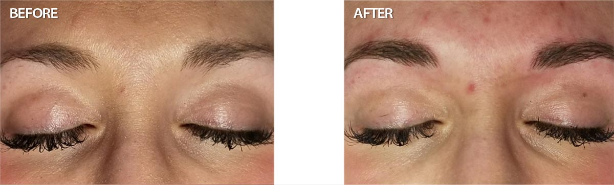 Billings Clinic Facial Plastics and Medical Spa Microblading