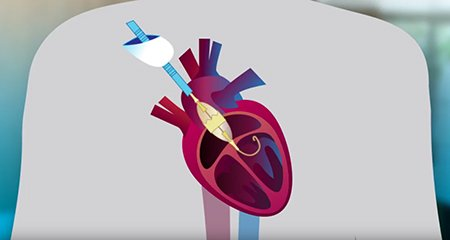 Transcatheter Aortic Valve Replacement (TAVR) general information video playlist